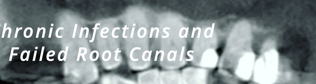 Chronic Infections and Failed Root Canals